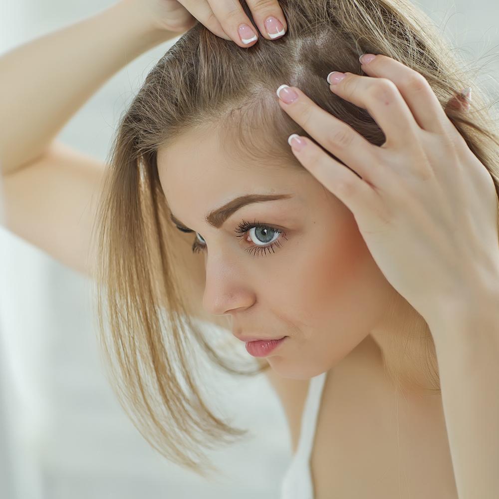 Fettige Kopfhaut – effiziente Hilfe